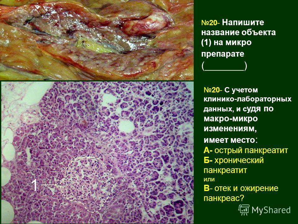 20- Напишите название объекта (1) на микро препарате (_______) 20- С учетом клинико-лабораторных данных, и с удя по макро-микро изменениям, имеет место : А- острый панкреатит Б- хронический панкреатит или В- отек и ожирение панкреас? 1