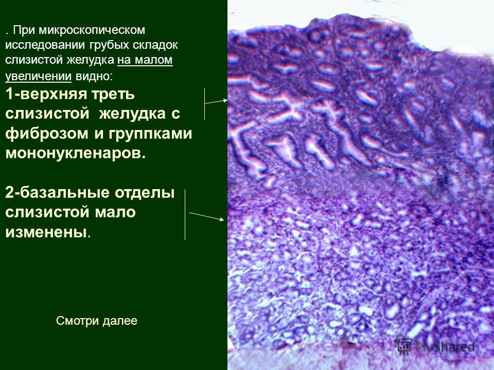 . При микроскопическом исследовании грубых складок слизистой желудка на малом увеличении видно: 1-верхняя треть слизистой желудка с фиброзом и группками мононукленаров. 2-базальные отделы слизистой мало изменены. Смотри далее