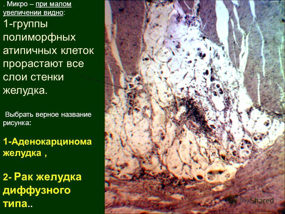 . Микро – при малом увеличении видно: 1-группы полиморфных атипичных клеток прорастают все слои стенки желудка. Выбрать верное название рисунка: 1-Аденокарцинома желудка, 2- Рак желудка диффузного типа..