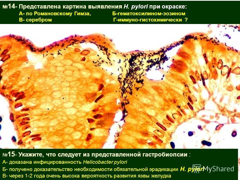 15 - Укажите, что следует из представленной гастробиопсии : А- доказана инфицированность Helicobacter pylori Б- получено доказательство необходимости обязательной эрадикации H. pylori В- через 1-2 года очень высока вероятность развития язвы желудка 1