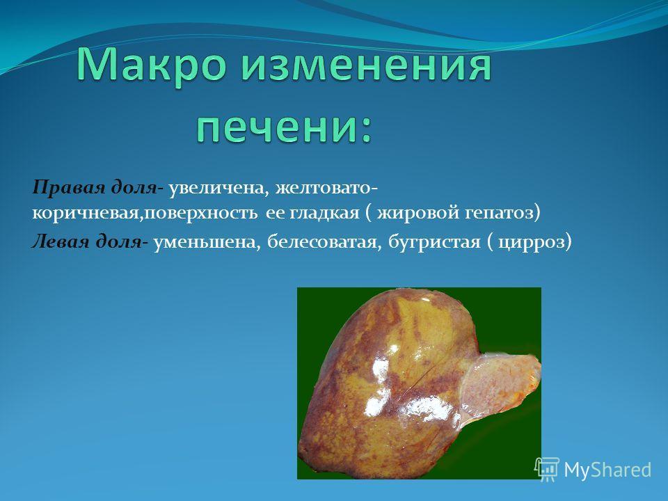 Правая доля- увеличена, желтовато- коричневая,поверхность ее гладкая ( жировой гепатоз) Левая доля- уменьшена, белесоватая, бугристая ( цирроз)