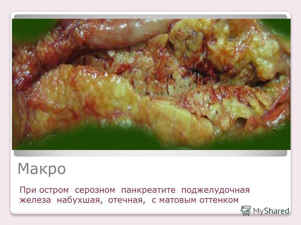 Макро При остром серозном панкреатите поджелудочная железа набухшая, отечная, с матовым оттенком