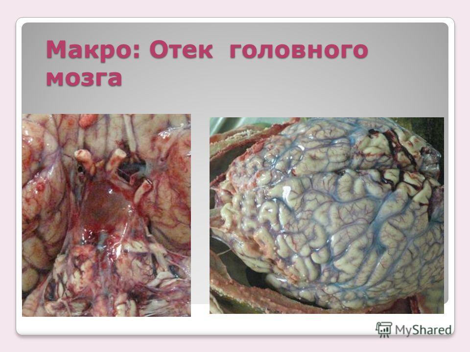 Макро: Отек головного мозга