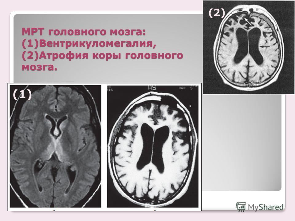 сегодня атрофия головного мозга у детей термобелья Следует отметит