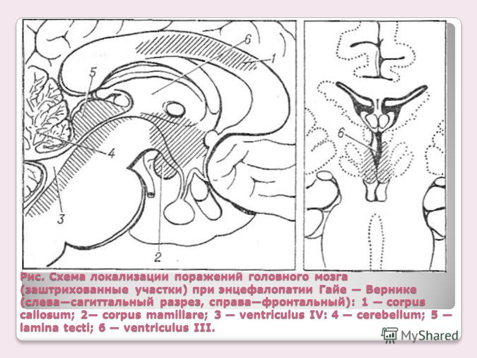 Рис. Схема локализации поражений головного мозга (заштрихованные участки) при энцефалопатии Гайе Вернике (слевасагиттальный разрез, справафронтальный): 1 corpus callosum; 2 corpus mamillare; 3 ventriculus IV: 4 cerebellum; 5 lamina tecti; 6 ventricul