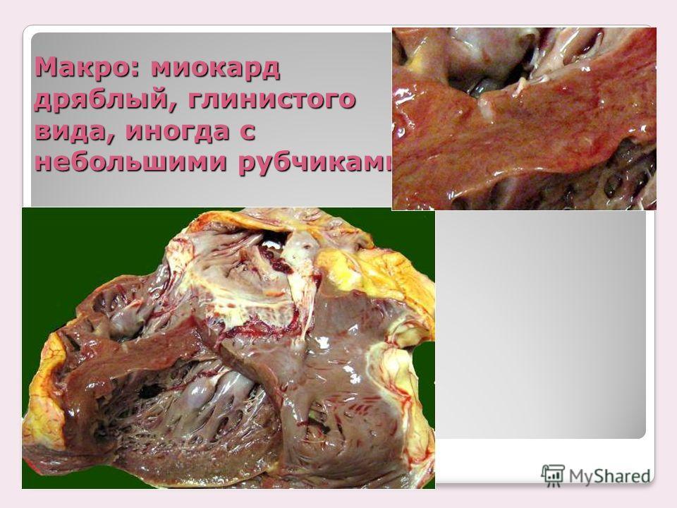 Макро: миокард дряблый, глинистого вида, иногда с небольшими рубчиками