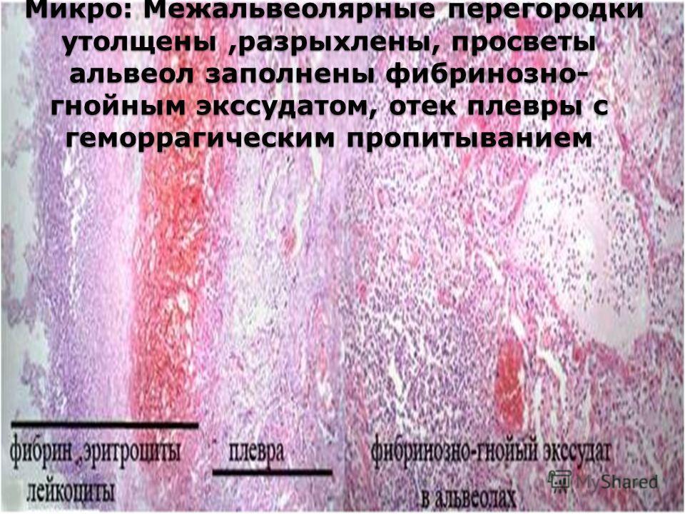 Микро: Межальвеолярные перегородки утолщены,разрыхлены, просветы альвеол заполнены фибринозно- гнойным экссудатом, отек плевры с геморрагическим пропитыванием Микро: Межальвеолярные перегородки утолщены,разрыхлены, просветы альвеол заполнены фибриноз
