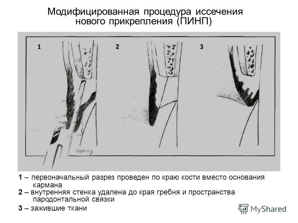 Модифицированная процедура иссечения нового прикрепления (ПИНП) 1 – первоначальный разрез проведен по краю кости вместо основания кармана 2 – внутренняя стенка удалена до края гребня и пространства пародонтальной связки 3 – зажившие ткани