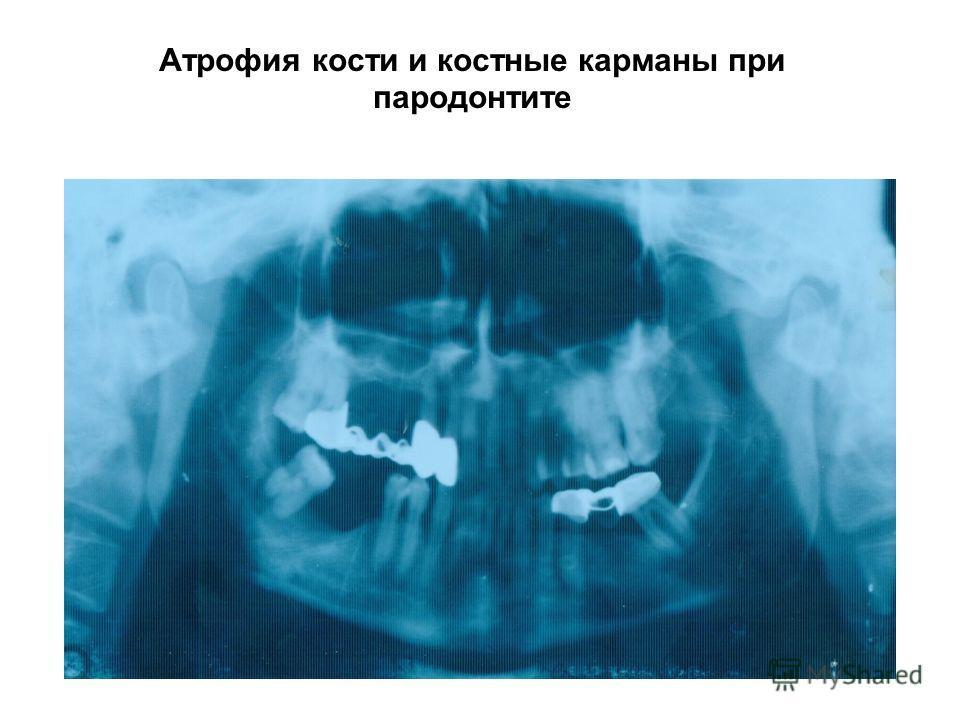 Атрофия кости и костные карманы при пародонтите