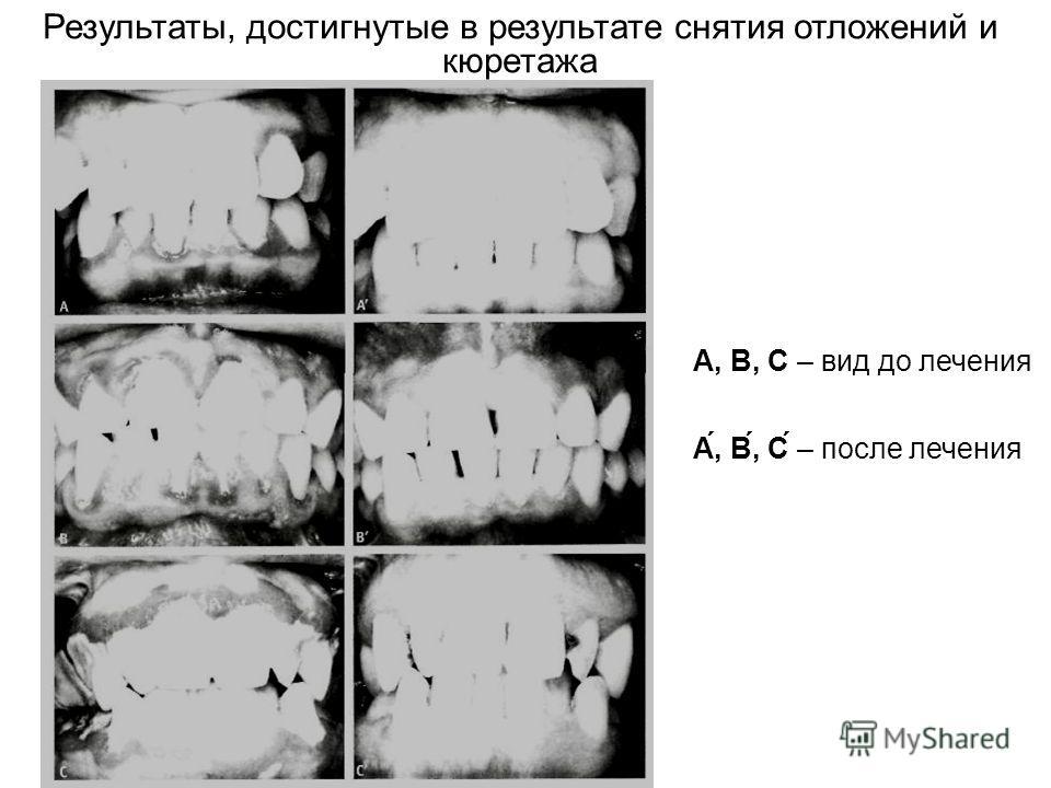 Результаты, достигнутые в результате снятия отложений и кюретажа А, В, С – вид до лечения А́, В́, С́ – после лечения