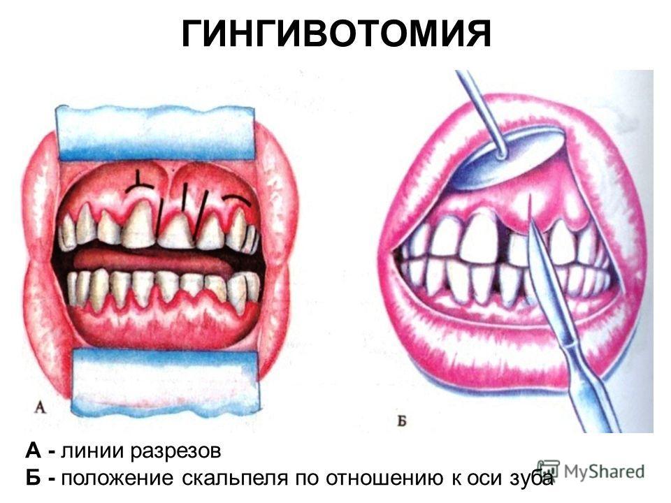 ГИНГИВОТОМИЯ А - линии разрезов Б - положение скальпеля по отношению к оси зуба