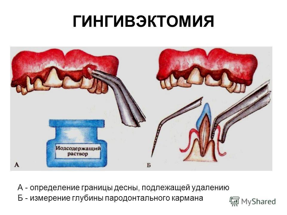 ГИНГИВЭКТОМИЯ А - определение границы десны, подлежащей удалению Б - измерение глубины пародонтального кармана