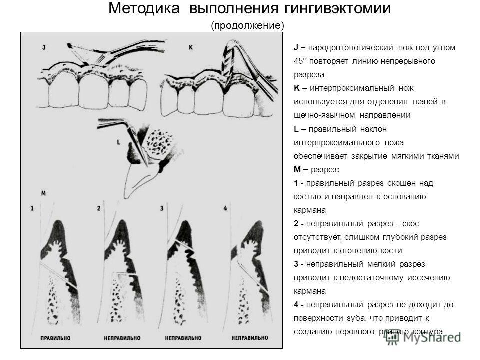 Методика выполнения гингивэктомии (продолжение) J – пародонтологический нож под углом 45° повторяет линию непрерывного разреза K – интерпроксимальный нож используется для отделения тканей в щечно-язычном направлении L – правильный наклон интерпроксим