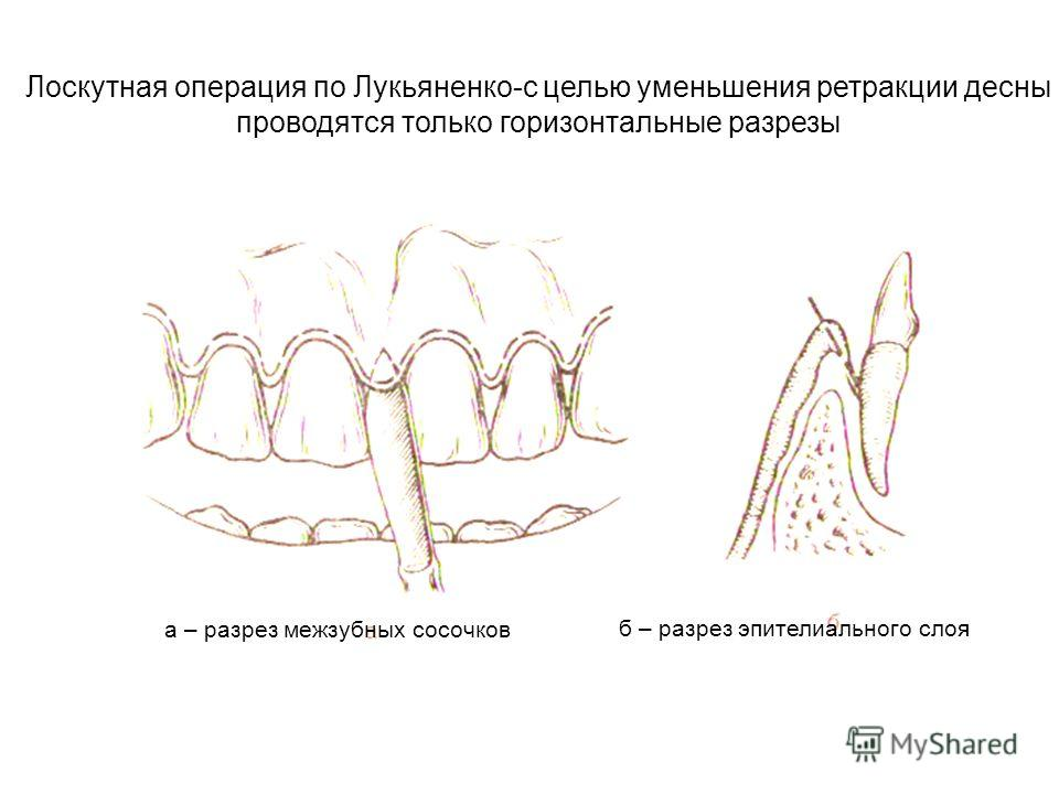 б – разрез эпителиального слоя Лоскутная операция по Лукьяненко-с целью уменьшения ретракции десны проводятся только горизонтальные разрезы а – разрез межзубных сосочков
