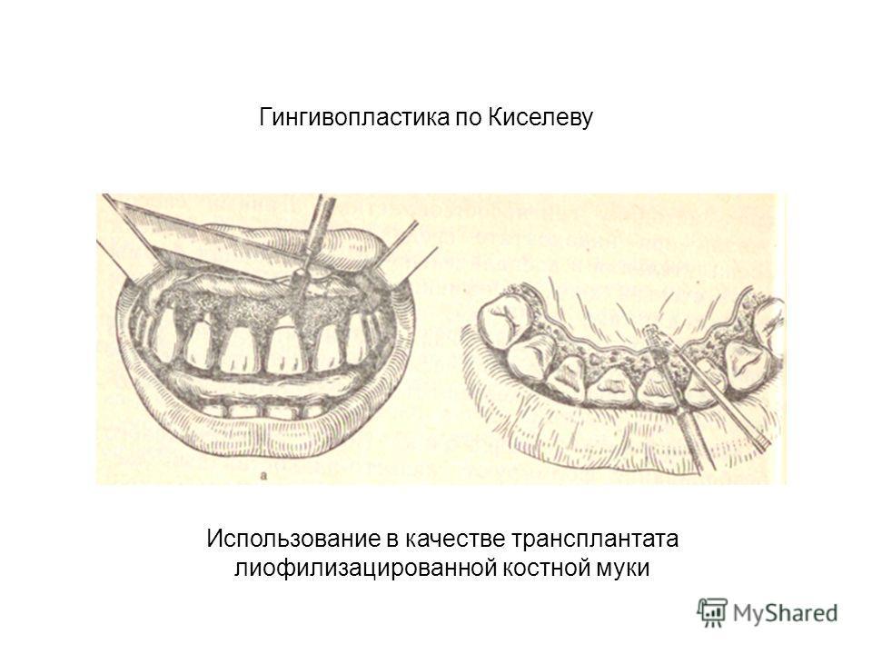 Гингивопластика по Киселеву Использование в качестве трансплантата лиофилизацированной костной муки