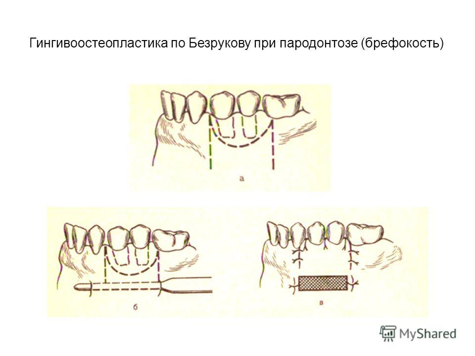 Гингивоостеопластика по Безрукову при пародонтозе (брефокость)