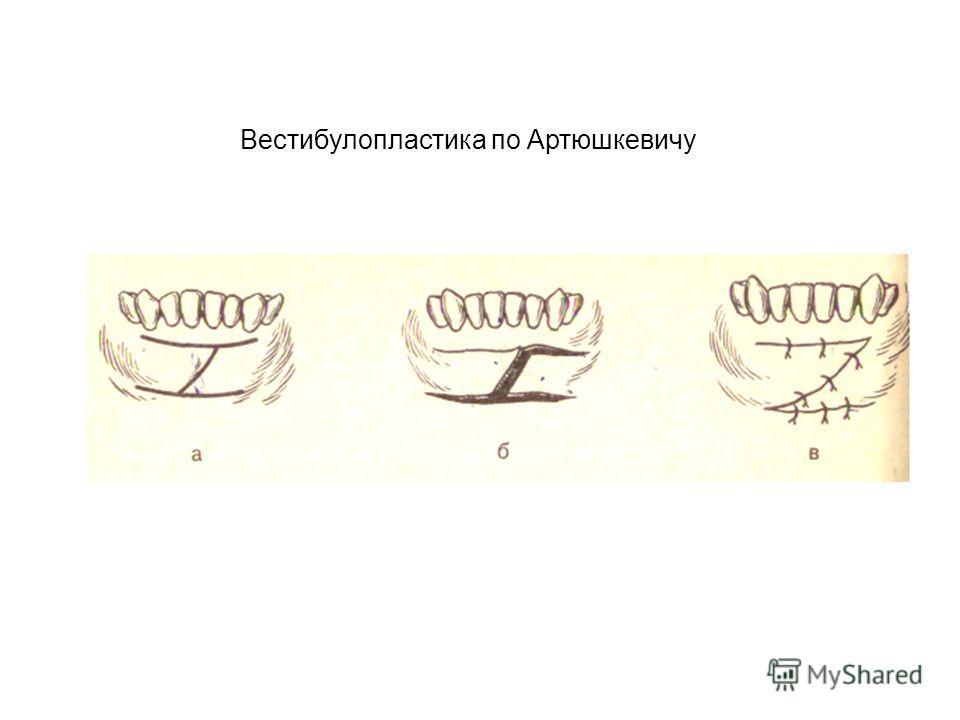 Вестибулопластика по Артюшкевичу