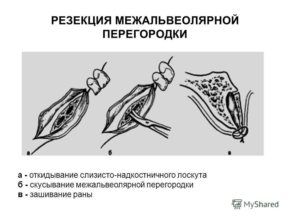 РЕЗЕКЦИЯ МЕЖАЛЬВЕОЛЯРНОЙ ПЕРЕГОРОДКИ а - откидывание слизисто-надкостничного лоскута б - скусывание межальвеолярной перегородки в - зашивание раны