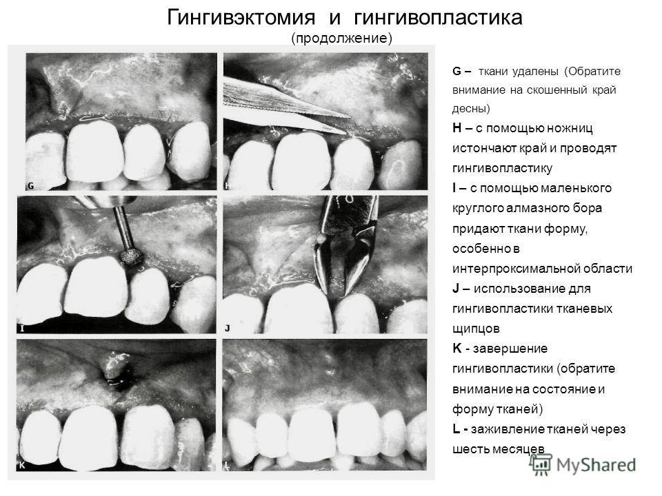 Гингивэктомия и гингивопластика (продолжение) G – ткани удалены (Обратите внимание на скошенный край десны) H – с помощью ножниц истончают край и проводят гингивопластику I – с помощью маленького круглого алмазного бора придают ткани форму, особенно