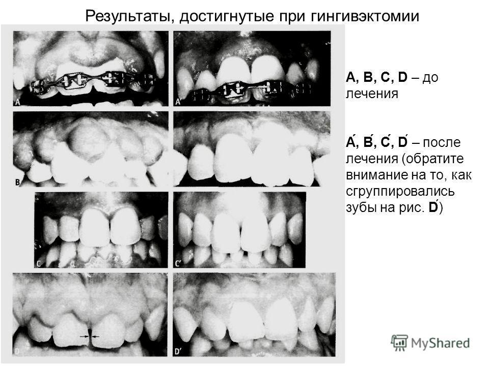 Результаты, достигнутые при гингивэктомии А, В, С, D – до лечения А́, В́, С́, D – после лечения (обратите внимание на то, как сгруппировались зубы на рис. D)