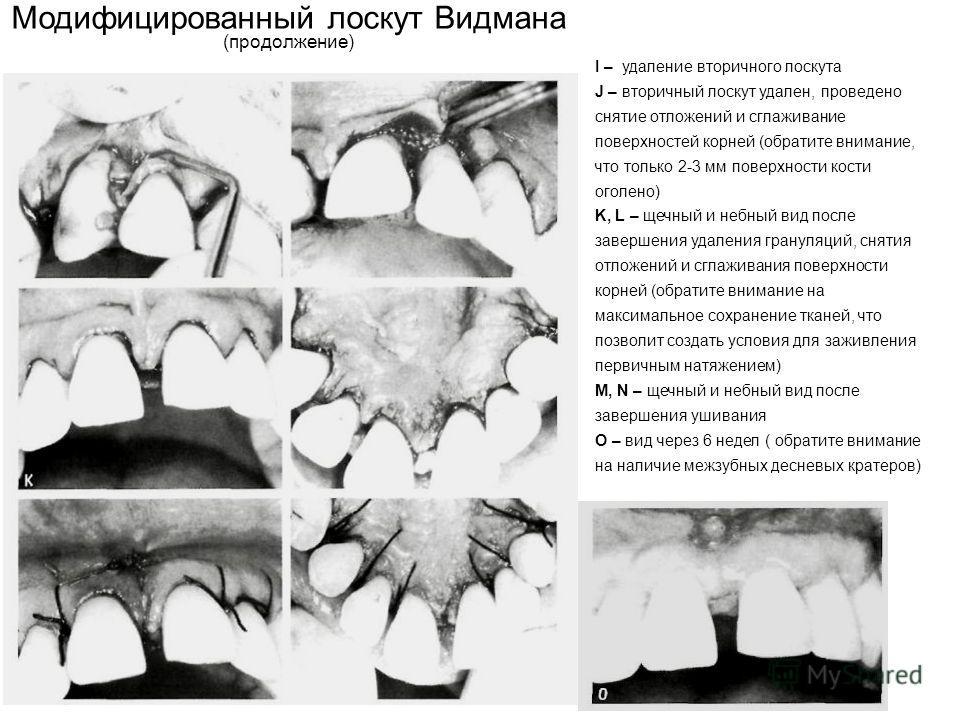 Модифицированный лоскут Видмана (продолжение) I – удаление вторичного лоскута J – вторичный лоскут удален, проведено снятие отложений и сглаживание поверхностей корней (обратите внимание, что только 2-3 мм поверхности кости оголено) K, L – щечный и н