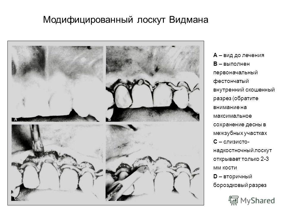 Модифицированный лоскут Видмана А – вид до лечения В – выполнен первоначальный фестончатый внутренний скошенный разрез (обратите внимание на максимальное сохранение десны в межзубных участках С – слизисто- надкостночный лоскут открывает только 2-3 мм