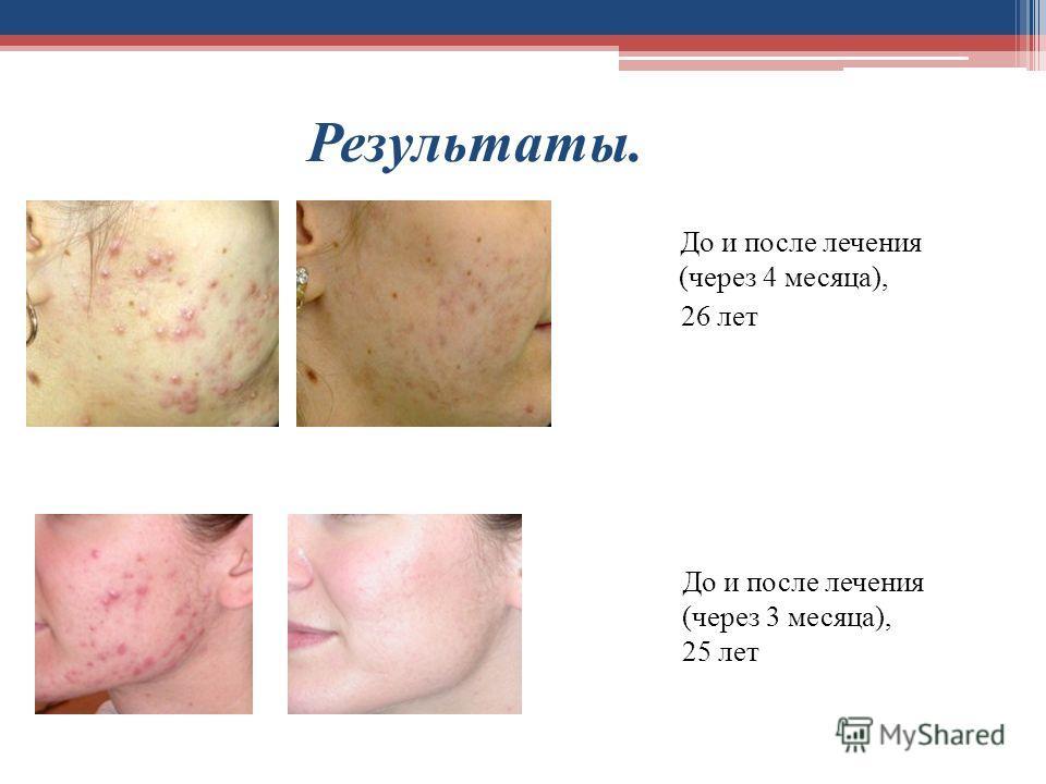 Результаты. До и после лечения (через 4 месяца), 26 лет До и после лечения (через 3 месяца), 25 лет