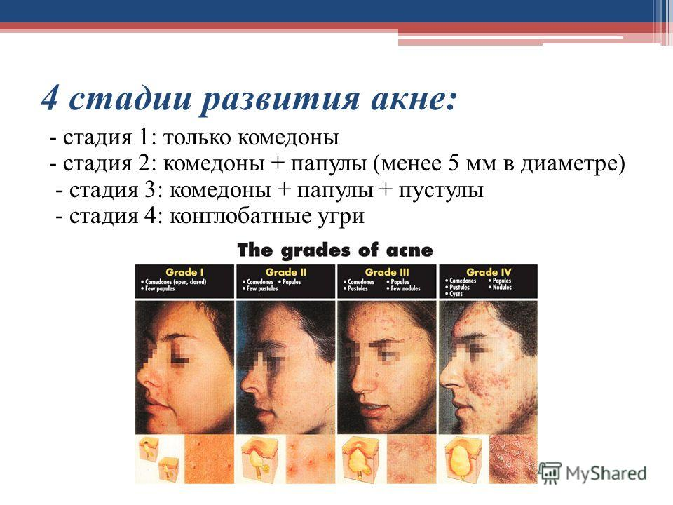 4 стадии развития акне: - стадия 1: только комедоны - стадия 2: комедоны + папулы (менее 5 мм в диаметре) - стадия 3: комедоны + папулы + пустулы - стадия 4: конглобатные угри