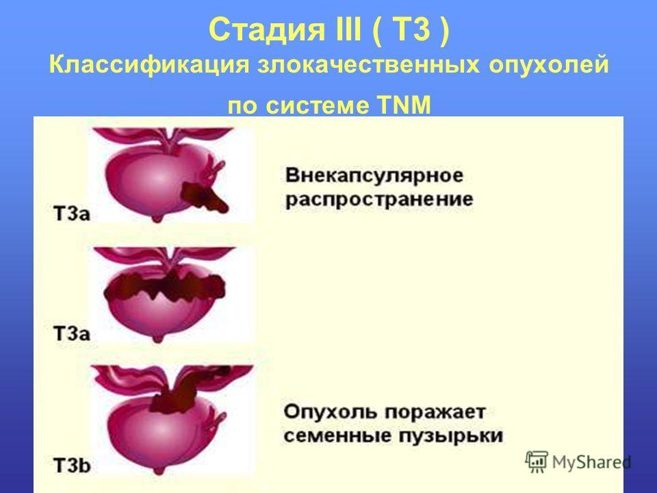 Стадия III ( T3 ) Классификация злокачественных опухолей по системе TNM