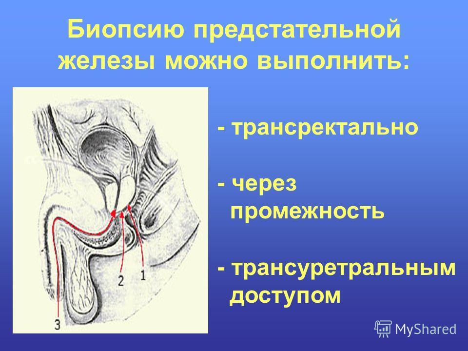 Биопсию предстательной железы можно выполнить: - трансректально - через промежность - трансуретральным доступом