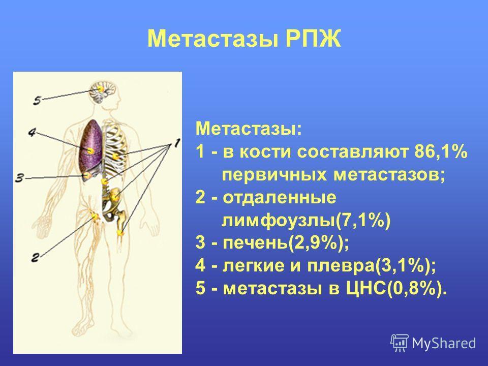 Метастазы РПЖ Метастазы: 1 - в кости составляют 86,1% первичных метастазов; 2 - отдаленные лимфоузлы(7,1%) 3 - печень(2,9%); 4 - легкие и плевра(3,1%); 5 - метастазы в ЦНС(0,8%).