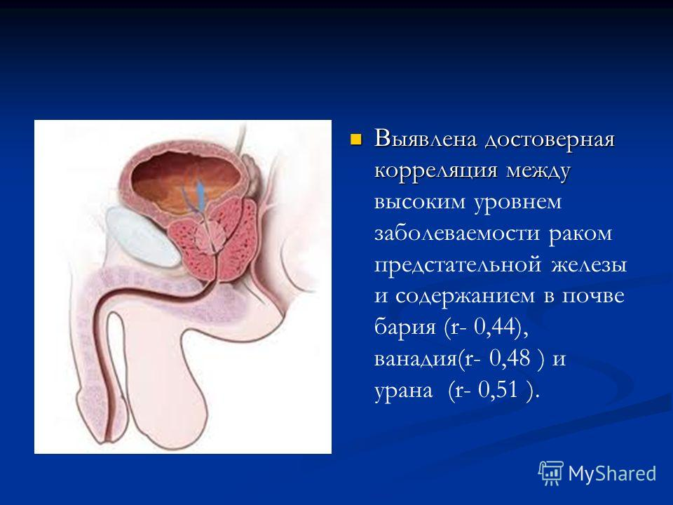 В ыявлена достоверная корреляция между высоким уровнем заболеваемости раком предстательной железы и содержанием в почве бария (r- 0,44), ванадия(r- 0,48 ) и урана (r- 0,51 ).