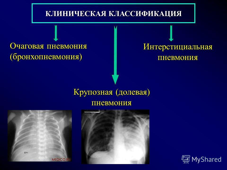 КЛИНИЧЕСКАЯ КЛАССИФИКАЦИЯ Очаговая пневмония (бронхопневмония) Крупозная (долевая) пневмония Интерстициальная пневмония