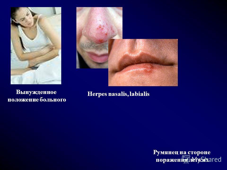 Вынужденное положение больного Herpes nasalis, labialis Румянец на стороне поражения легких