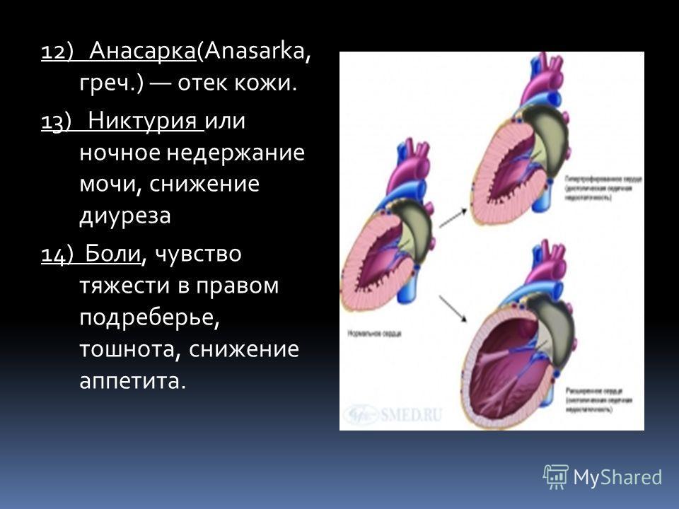 12) Анасарка(Anasarka, греч.) отек кожи. 13) Никтурия или ночное недержание мочи, снижение диуреза 14) Боли, чувство тяжести в правом подреберье, тошнота, снижение аппетита.