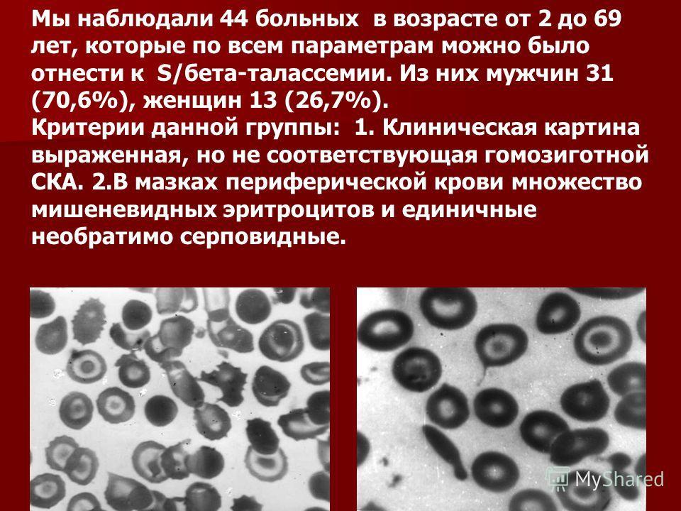 Мы наблюдали 44 больных в возрасте от 2 до 69 лет, которые по всем параметрам можно было отнести к S/бета-талассемии. Из них мужчин 31 (70,6%), женщин 13 (26,7%). Критерии данной группы: 1. Клиническая картина выраженная, но не соответствующая гомози