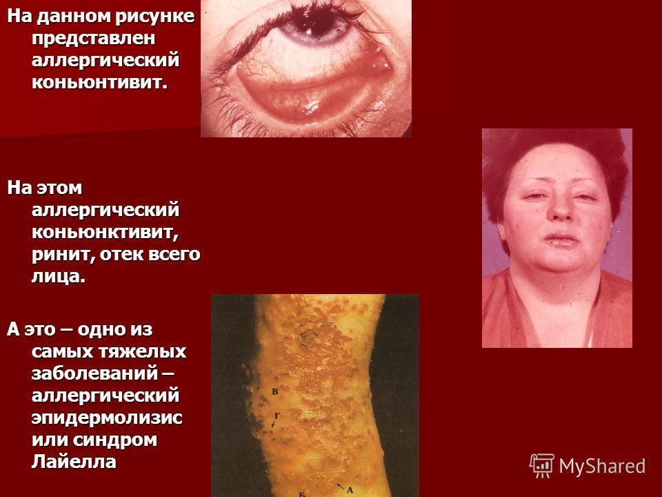 На данном рисунке представлен аллергический коньюнтивит. На этом аллергический коньюнктивит, ринит, отек всего лица. А это – одно из самых тяжелых заболеваний – аллергический эпидермолизис или синдром Лайелла
