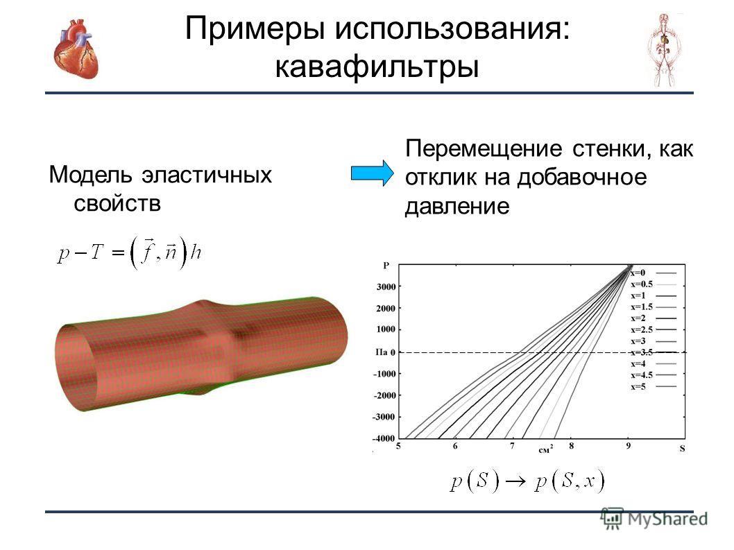 13 Примеры использования: кавафильтры Модель эластичных свойств Перемещение стенки, как отклик на добавочное давление