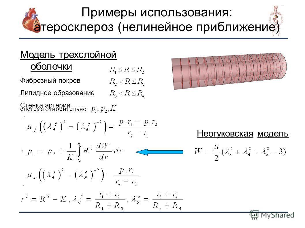 18 Примеры использования: атеросклероз (нелинейное приближение) Модель трехслойной оболочки Фиброзный покров Липидное образование Стенка артерии Неогуковская модель система относительно