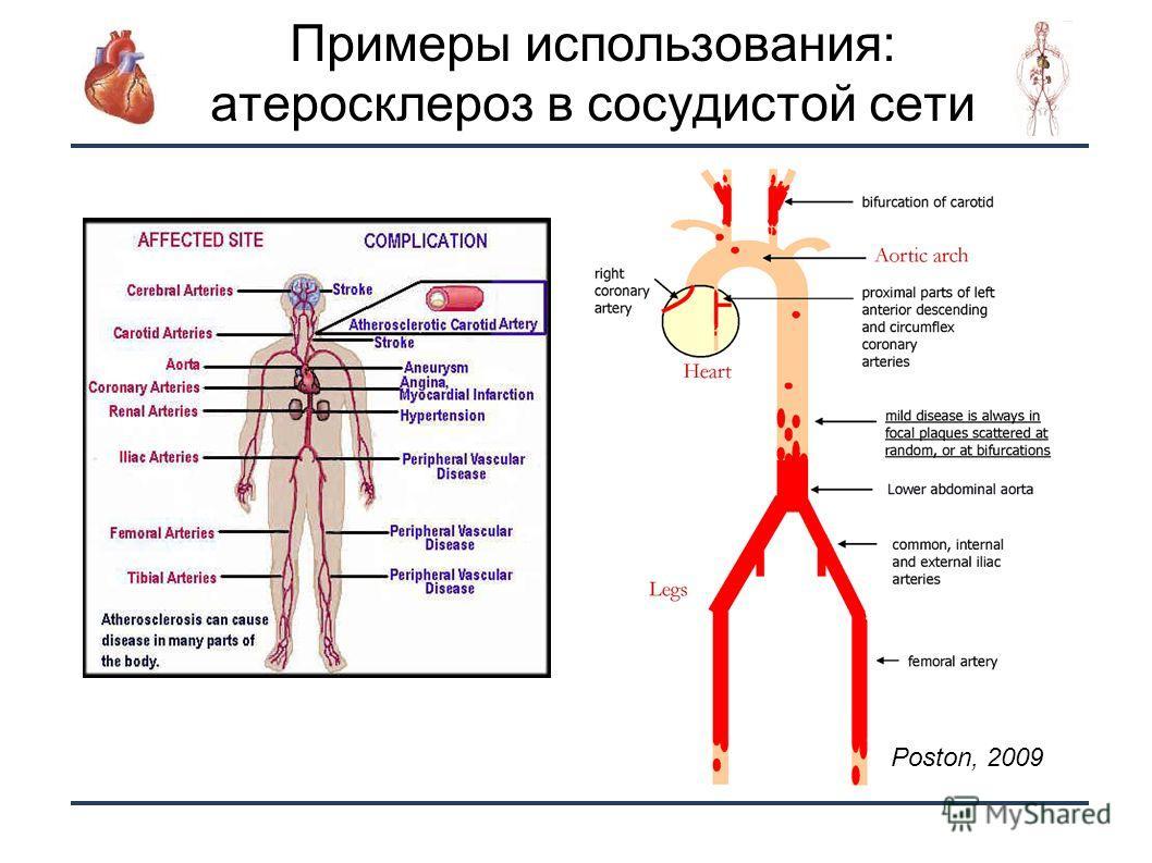 21 Примеры использования: атеросклероз в сосудистой сети Poston, 2009