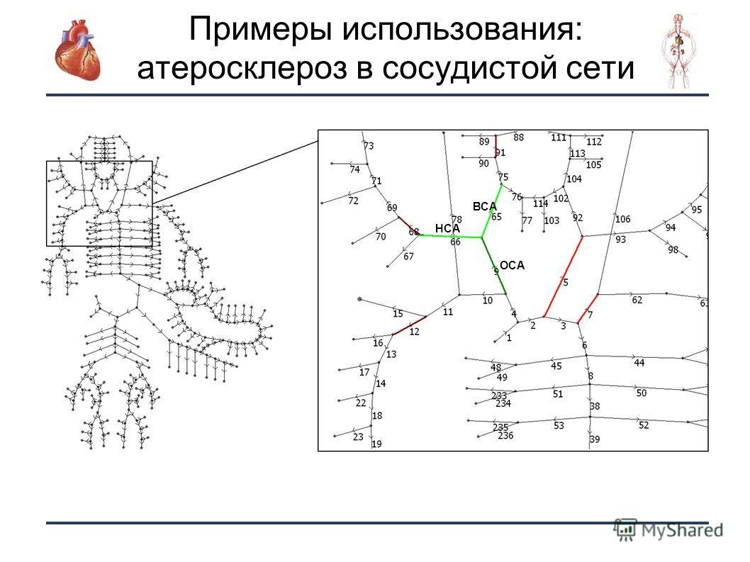 22 Примеры использования: атеросклероз в сосудистой сети ОСА ВСА НСА