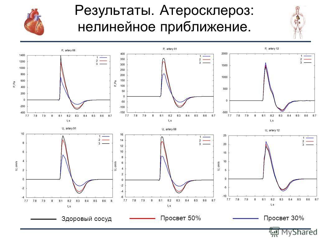 24 Здоровый сосуд Просвет 50%Просвет 30% Результаты. Атеросклероз: нелинейное приближение.