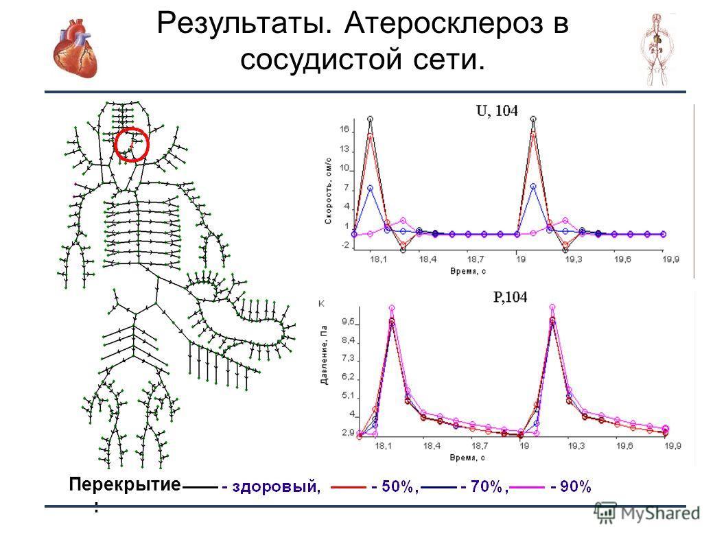 26 Результаты. Атеросклероз в сосудистой сети. Перекрытие :