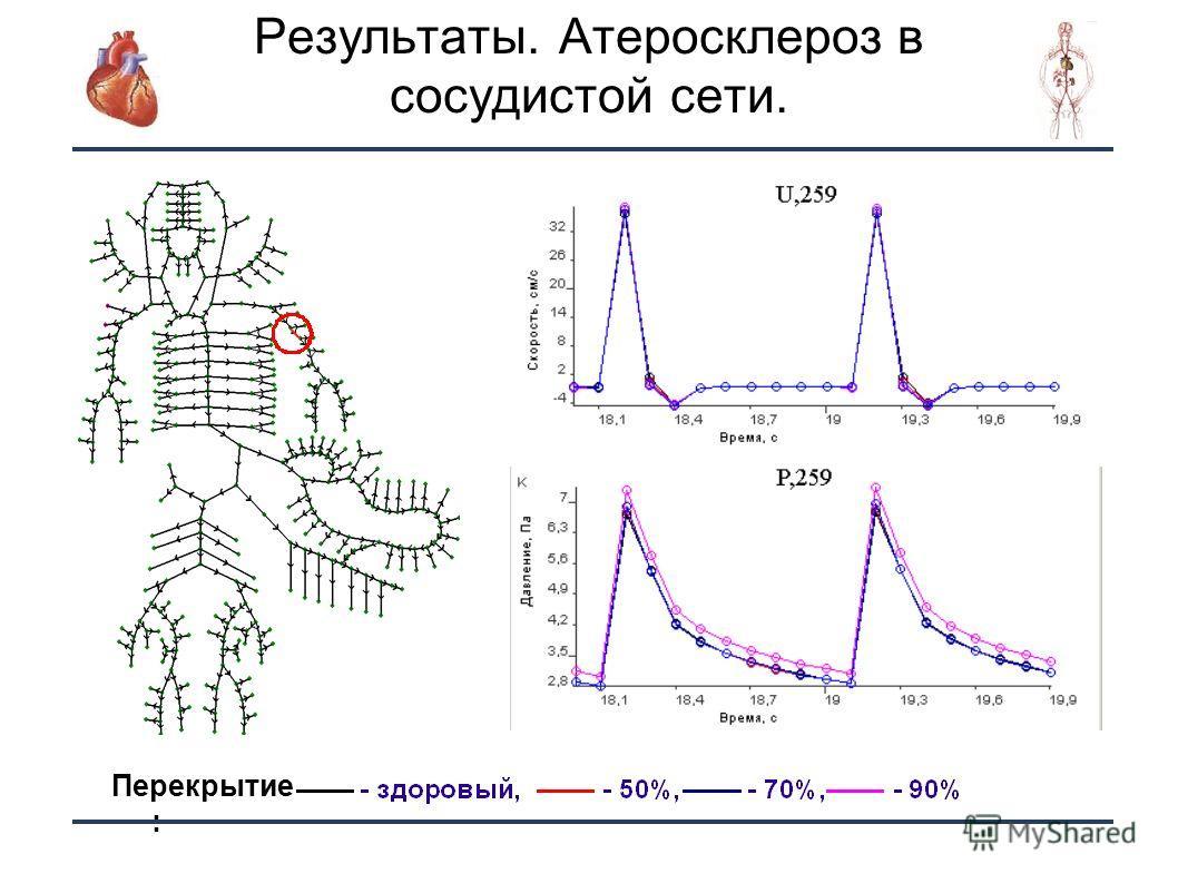 29 Результаты. Атеросклероз в сосудистой сети. Перекрытие :
