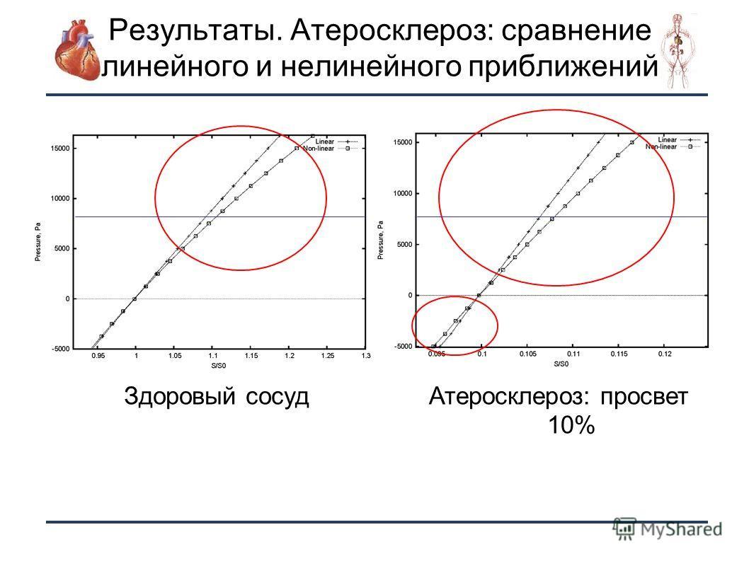 18 Результаты. Атеросклероз: сравнение линейного и нелинейного приближений Здоровый сосудАтеросклероз: просвет 10%