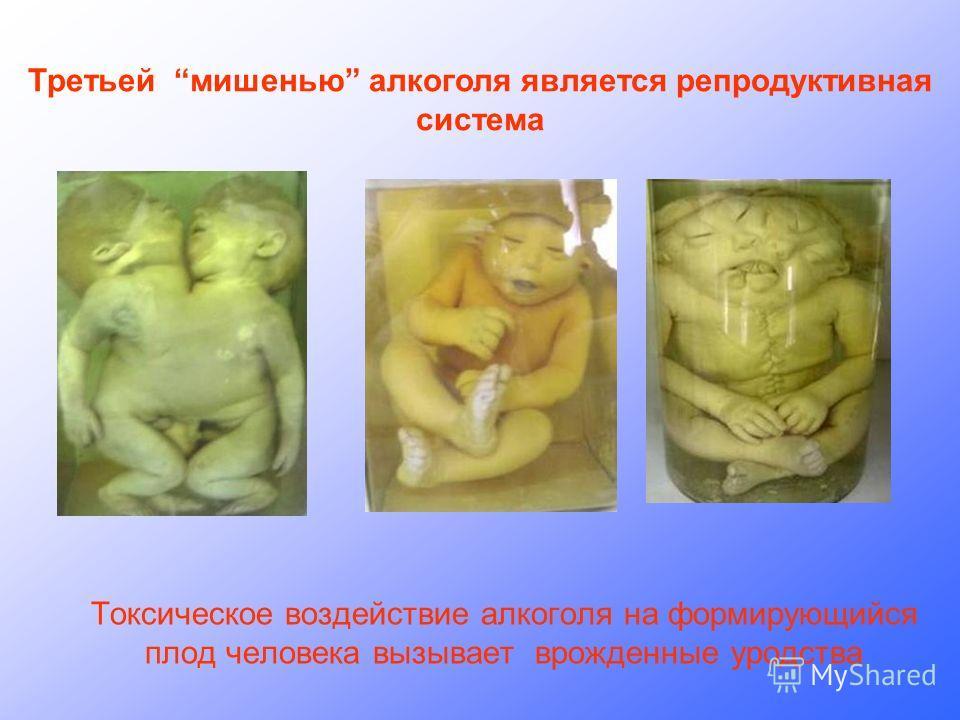 Токсическое воздействие алкоголя на формирующийся плод человека вызывает врожденные уродства Третьей мишенью алкоголя является репродуктивная система