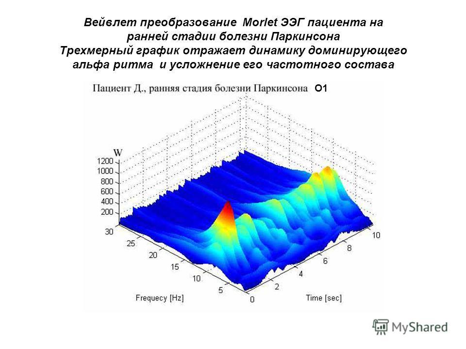 Вейвлет преобразование Morlet ЭЭГ пациента на ранней стадии болезни Паркинсона Трехмерный график отражает динамику доминирующего альфа ритма и усложнение его частотного состава О1