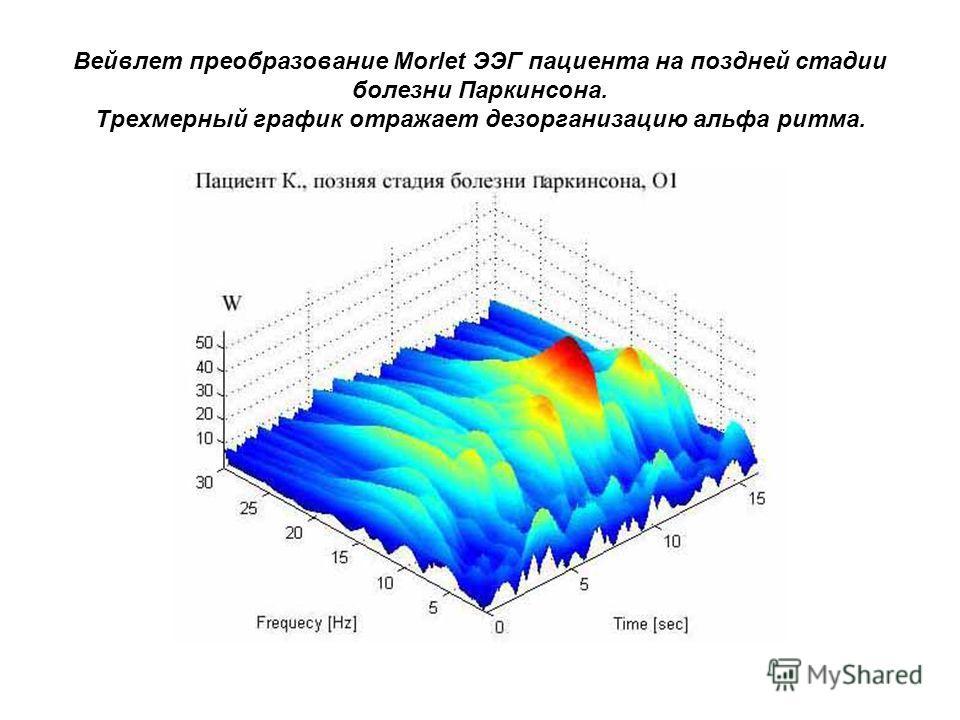 Вейвлет преобразование Morlet ЭЭГ пациента на поздней стадии болезни Паркинсона. Трехмерный график отражает дезорганизацию альфа ритма.