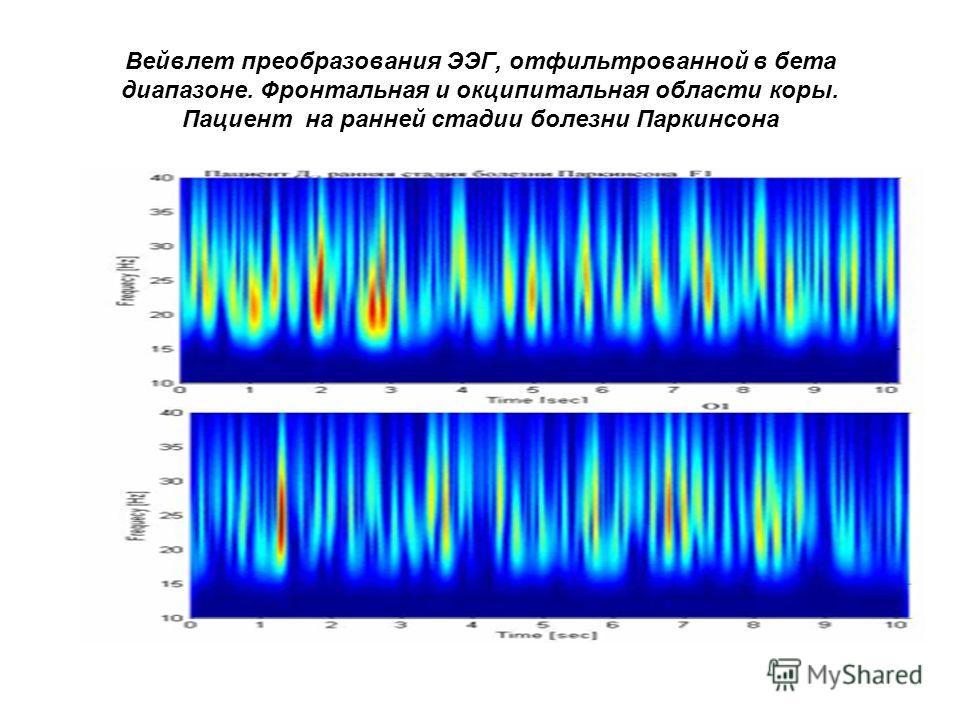 Вейвлет преобразования ЭЭГ, отфильтрованной в бета диапазоне. Фронтальная и окципитальная области коры. Пациент на ранней стадии болезни Паркинсона