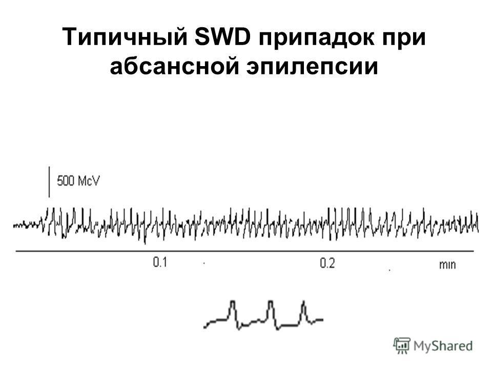 Типичный SWD припадок при абсансной эпилепсии